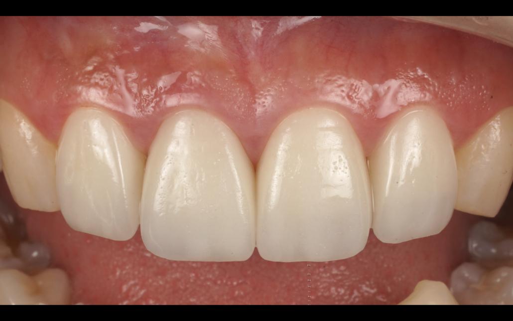 前歯の歯並びをセラミックで治した症例 - <ネット予約可>茅ヶ崎駅前 ...
