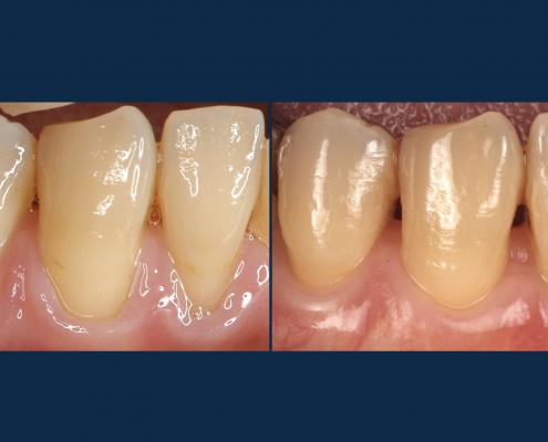 歯ぐき下がり 治療法 術前後